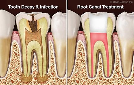 after-root-canal(1).jpg